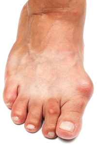 Can Bunions Be Prevented?