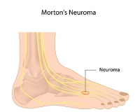 What Are the Treatments for Morton's Neuroma?