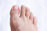 When Should I See a Doctor for My Ingrown Toenail?