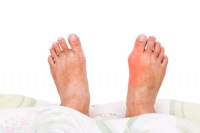 Is Gout Caused By Specific Foods?